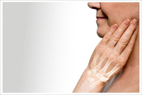 Resultado de imagen para Mujeres con osteoporosis