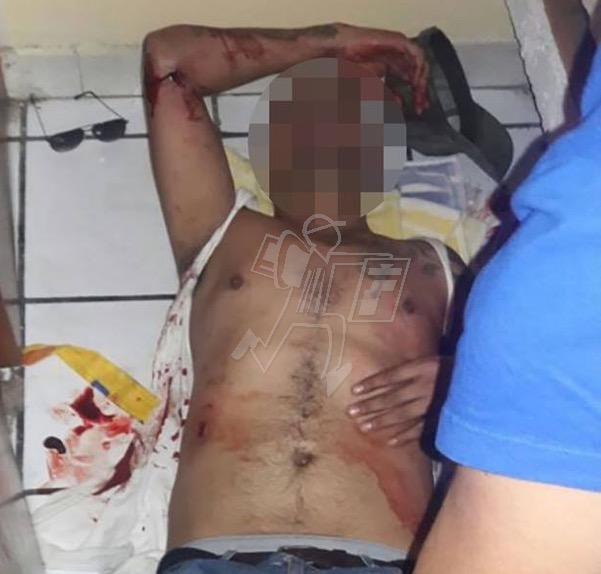 Es herido a balazos en su hogar, termina hospitalizado
