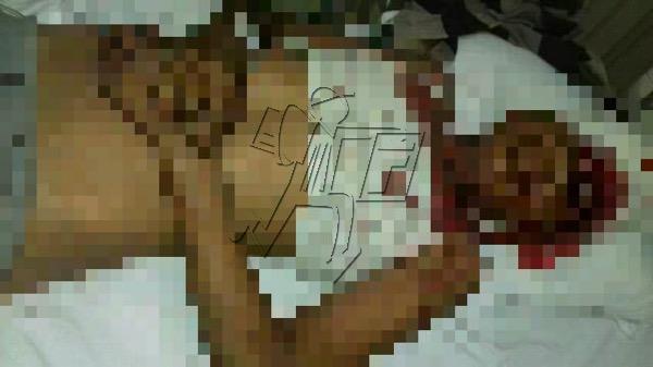 Menor sufre muerte cerebral por herida de arma de perdigones