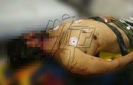 Balean a hombre a un lado de la plaza de Chilchota y muere en una clínica