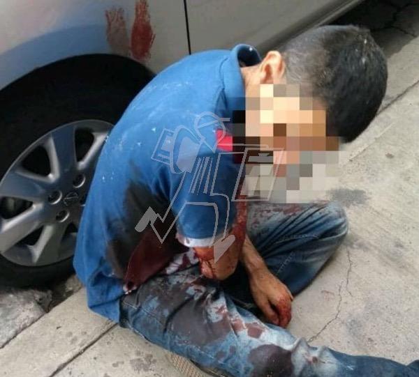 Ciclista queda herido en ataque a balazos en Zamora