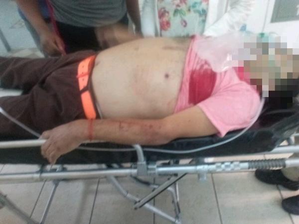 Taquero fallece en hospital tras ataque a balazos, en Zamora